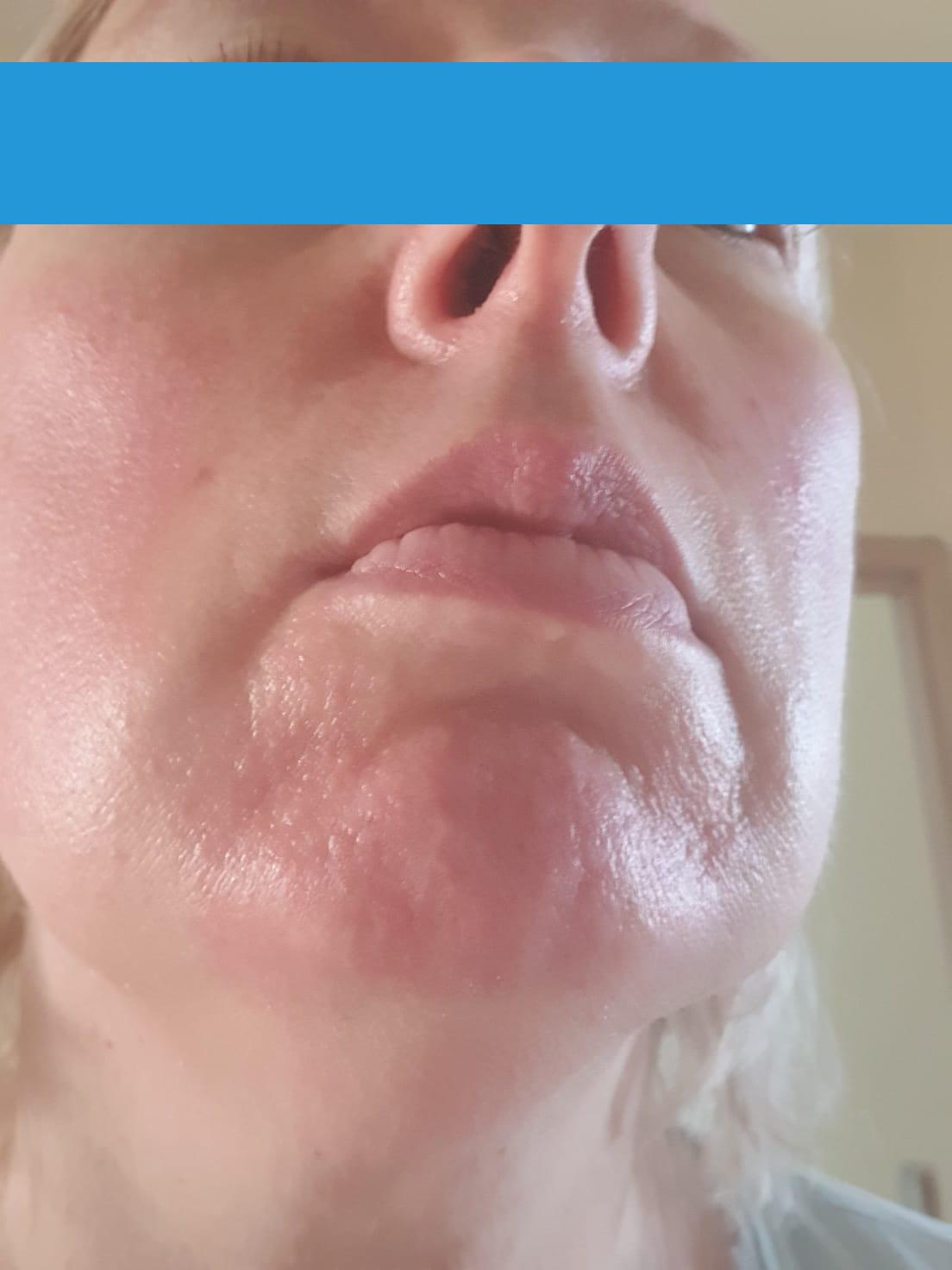Laser frakcyjny CO2 Laser frakcyjny - odmładzanie twarzy, usuwanie blizn i zmarszczek Nysa